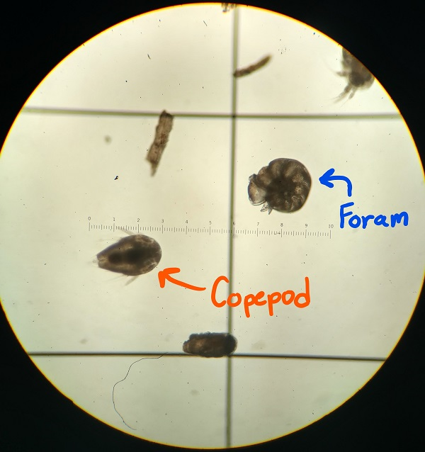 Copepod and foram in microscope.