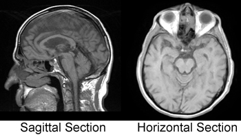 a study on the right and left brain of the human body One of the most complex and remarkable organs of the human body, the brain is the most important component of the nervous system studies reveal that people with right brain dominance excel in fields like athletics, entrepreneurship, music, etc, whereas people with left brain dominance excel in law, accounting, etc.