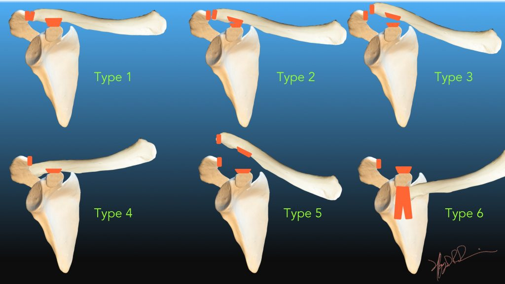 Rockwood Classification Of Acromioclavicular Joint Separation Uw