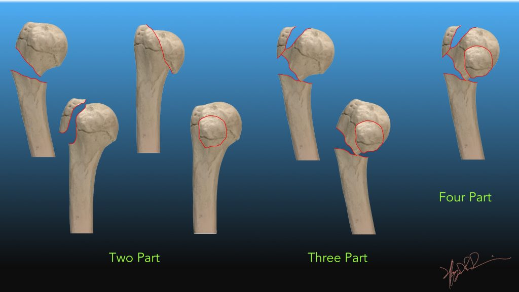 Neer Classification Of Humeral Head Fractures Uw Emergency Radiology