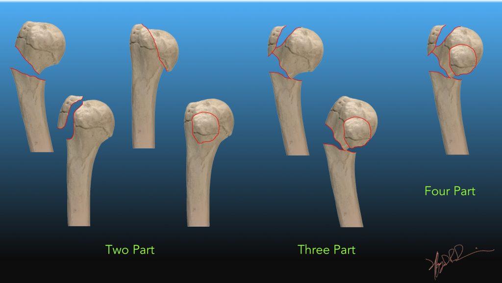 Neer Classification Of Humeral Head Fractures Uw Emergency Radiology