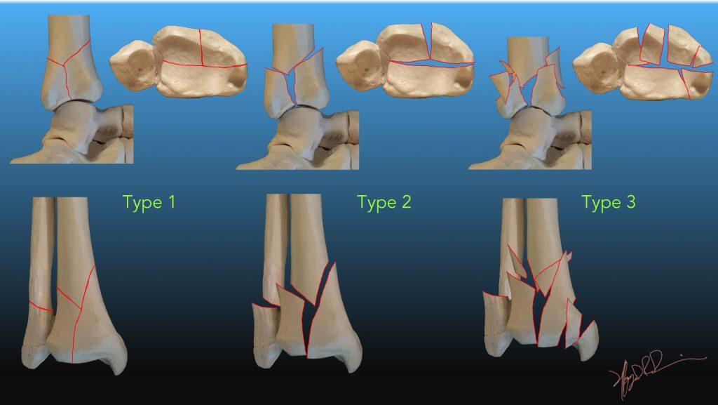 Ruedi and Allgower Classification of Pilon Fractures   UW Emergency ...