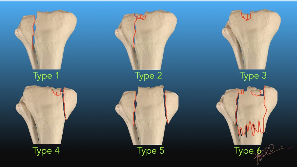 Everything you need to know about jj 39 s injury and future - Tibial plafond fracture classification ...