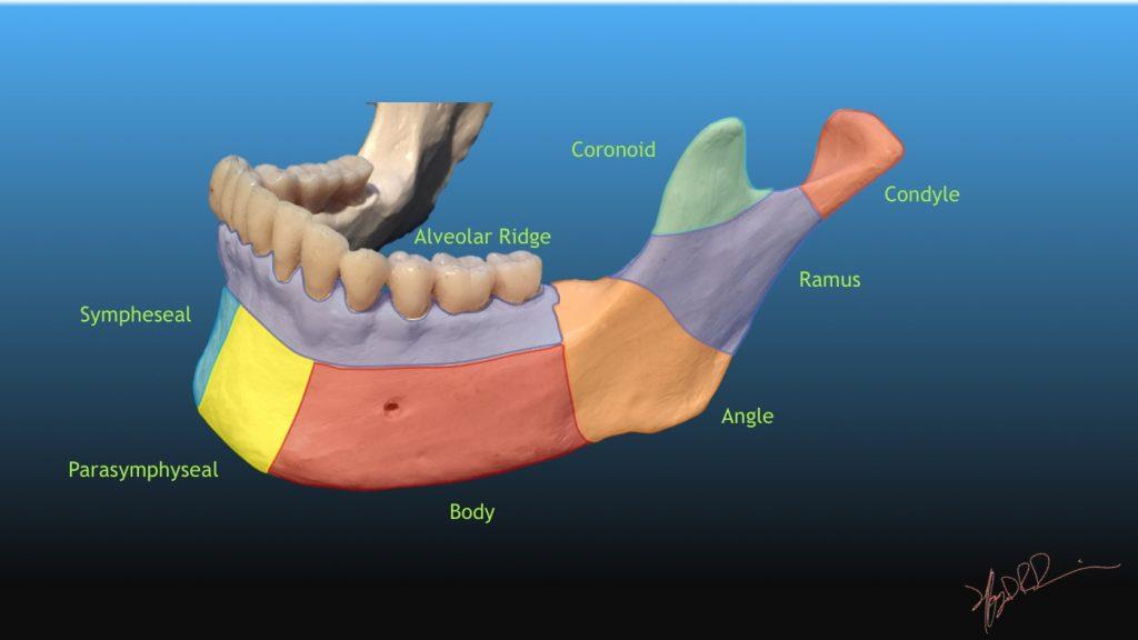 Dingman And Natvig Classification Of Mandibular Fractures Uw