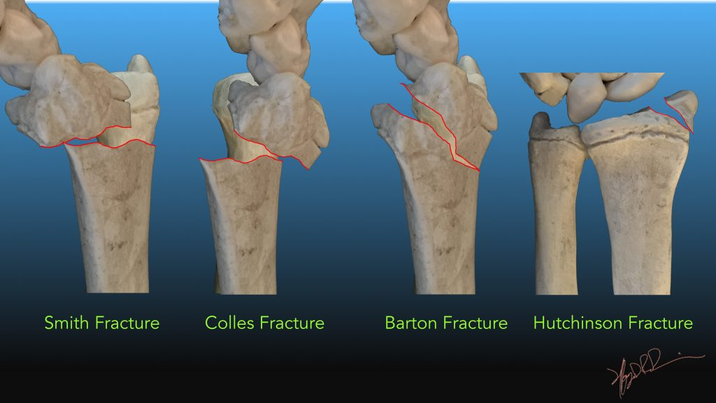 Common Distal Radial Fractures | UW Emergency Radiology