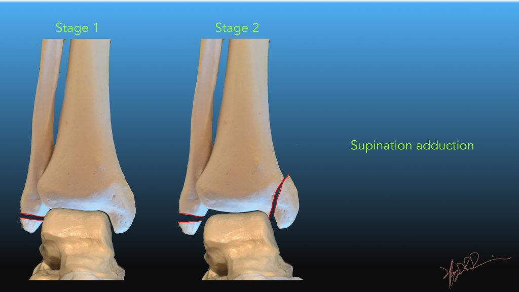 Lauge Hansen Classification Of Ankle Fractures