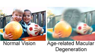 Image result for age related macular degeneration