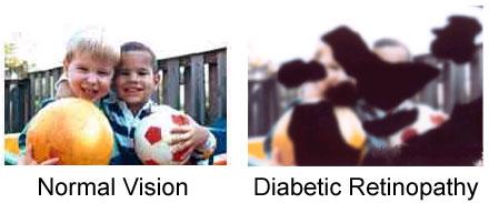 Eye Diseases Diabetic Retinopathy
